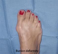 bunion 2